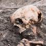 """""""Aandacht gestolen schedel overdreven"""""""