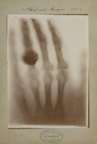 Afdruk van de röntgenfoto van de hand van Röntgens echtgenote